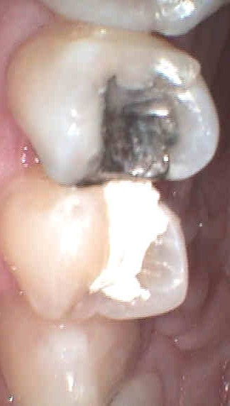 metal amalgam filling